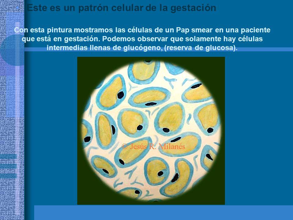 Este es un patrón celular del puerperio Esta es la pintura que yo encuentro la más dramática por su colorido y variedades celulares.