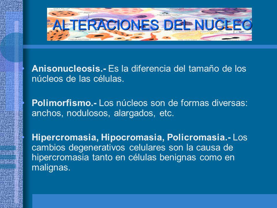 ALTERACIONES DEL NUCLEO Anisonucleosis.- Es la diferencia del tamaño de los núcleos de las células.