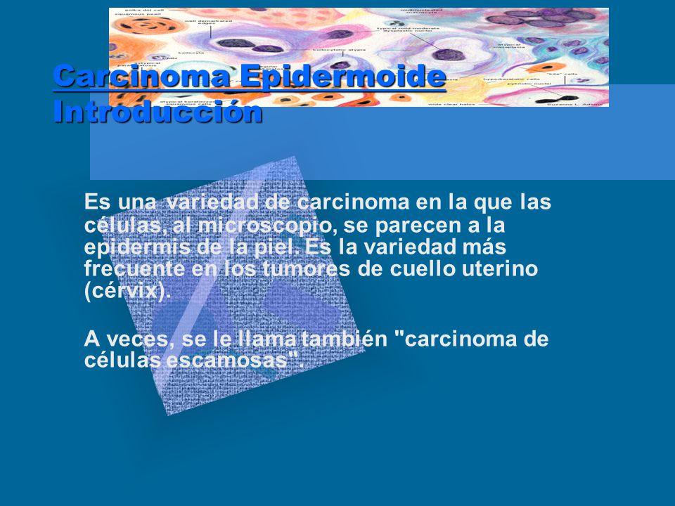 Carcinoma Epidermoide Introducción Es una variedad de carcinoma en la que las células, al microscopio, se parecen a la epidermis de la piel.
