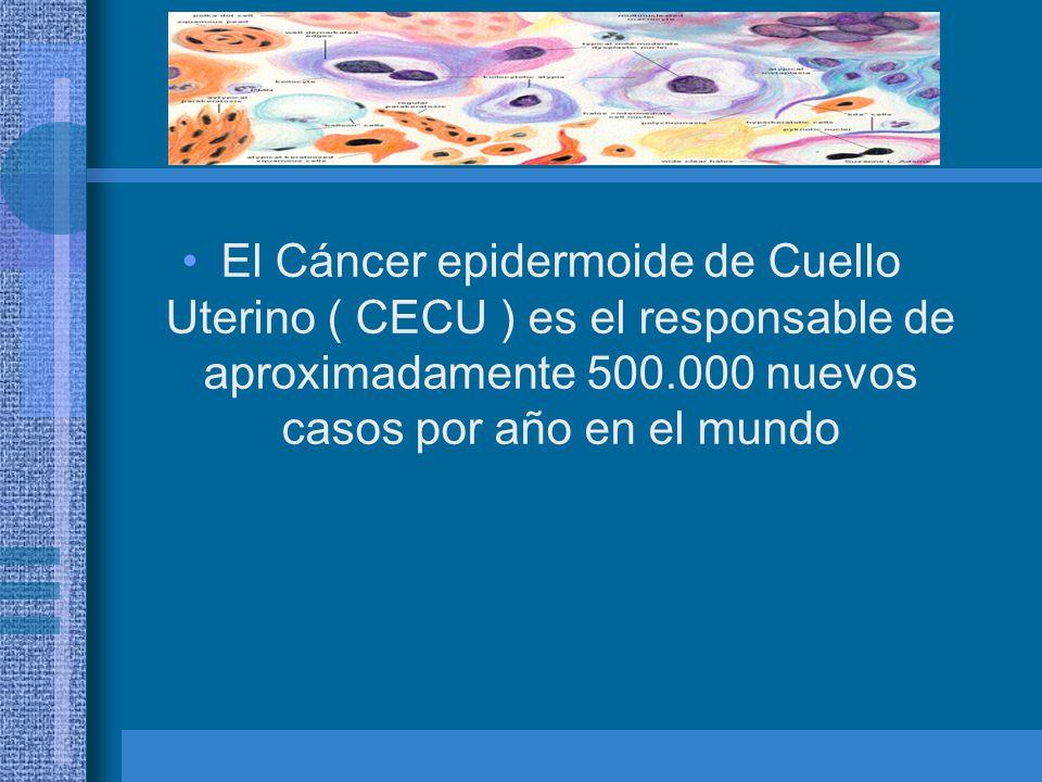La aparición del carcinoma epidermoide de cuello uterino va precedido por lesiones intraepiteliales escamosas conocidas como displasia moderada, severa y carcinoma in situ.