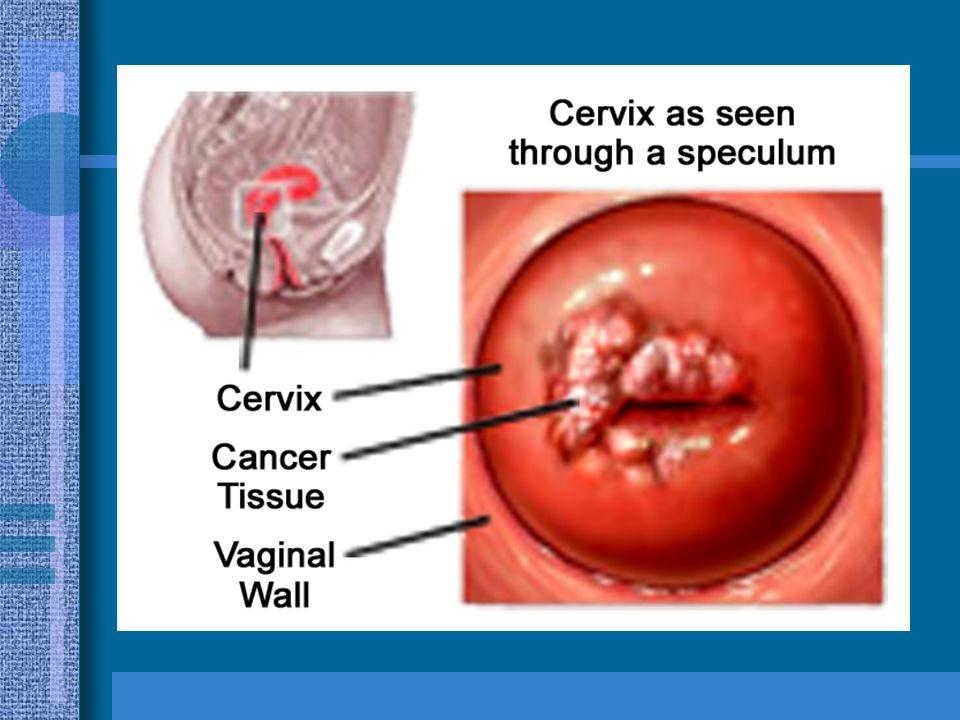 En el carcinoma epidermoide por orden de frecuencia se pueden observar: a) Células pequeñas b) Células Fibroideas c) Células en raqueta o renacuajo