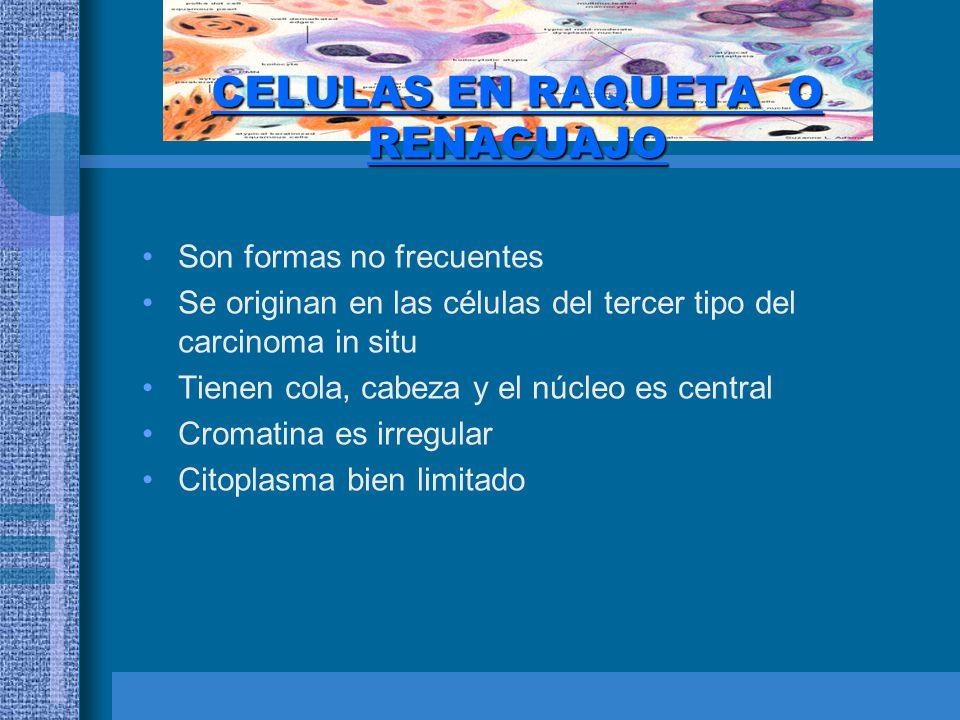 CELULAS EN RAQUETA O RENACUAJO Son formas no frecuentes Se originan en las células del tercer tipo del carcinoma in situ Tienen cola, cabeza y el núcleo es central Cromatina es irregular Citoplasma bien limitado
