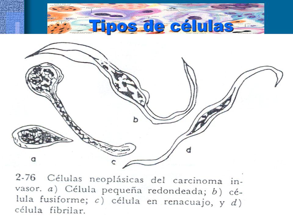 CERTEZA DIAGNOSTICA Si en un frotis se encuentran cualquiera de estos tipos celulares, el Dx citológico puede ser de Carcinoma Epidermoide El Dx citológico de carcinoma epidermoide es exacto en el 99 % de los casos en cuanto a malignidad Y en el 91.9 % en cuanto a estirpe Histológico