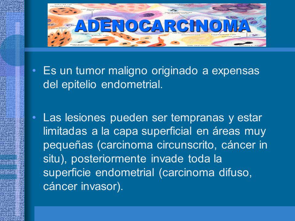ADENOCARCINOMA Es un tumor maligno originado a expensas del epitelio endometrial.