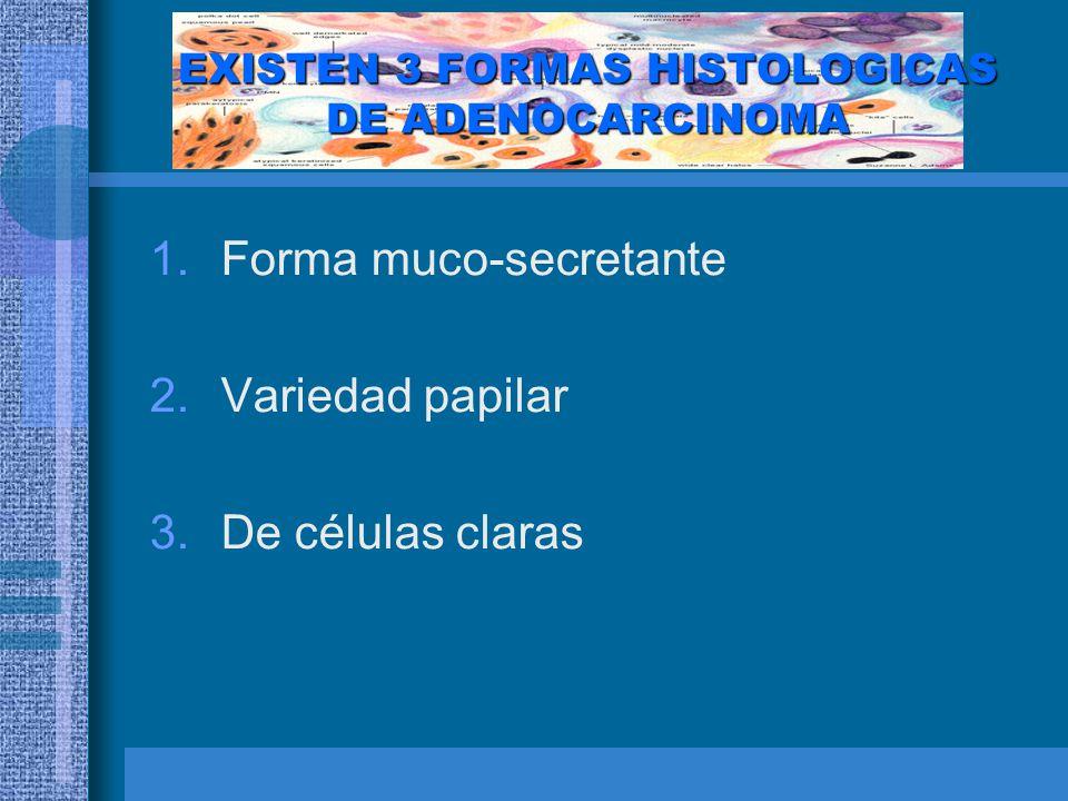 FORMA MUCO-SECRETANTE Las glándulas están revestidas por células cilíndricas altas, dispuestas en una sola hilera con los nucleos situados en la base y vacuolas en el citoplasma.