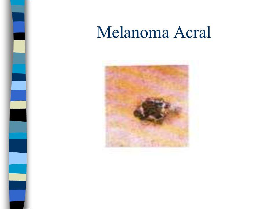 Melanoma Acral