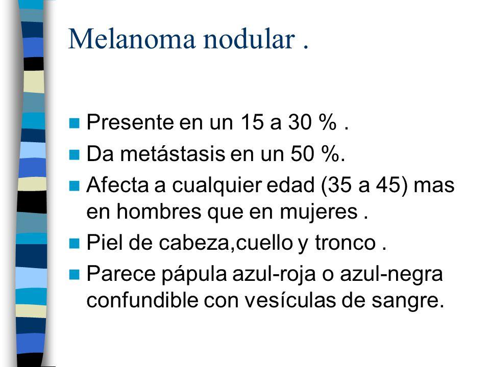 Melanoma nodular. Presente en un 15 a 30 %. Da metástasis en un 50 %. Afecta a cualquier edad (35 a 45) mas en hombres que en mujeres. Piel de cabeza,