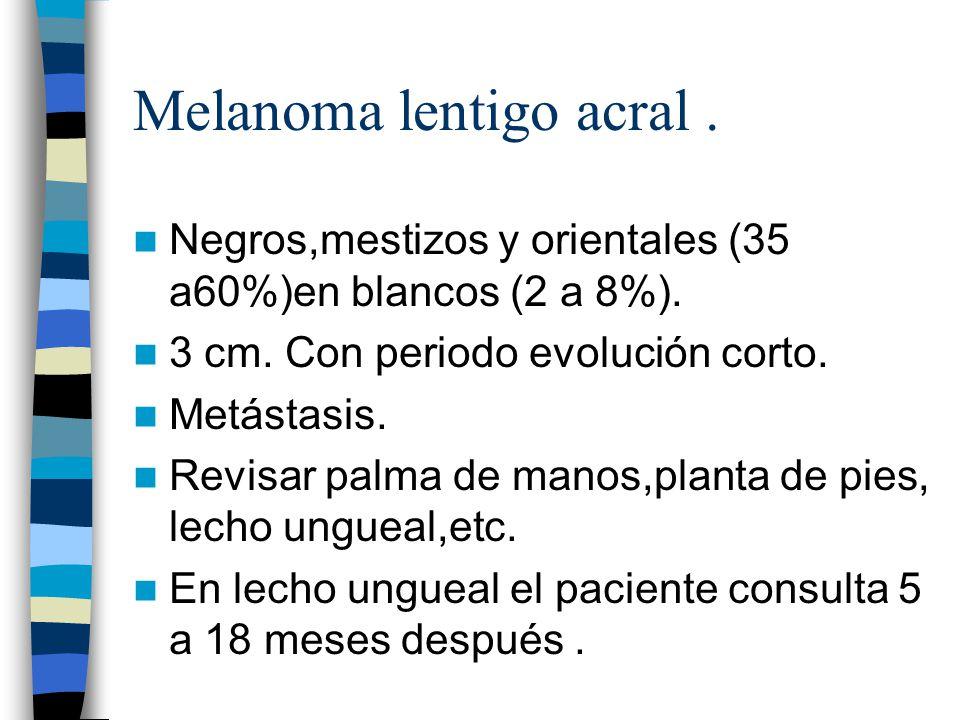 Melanoma lentigo acral. Negros,mestizos y orientales (35 a60%)en blancos (2 a 8%). 3 cm. Con periodo evolución corto. Metástasis. Revisar palma de man