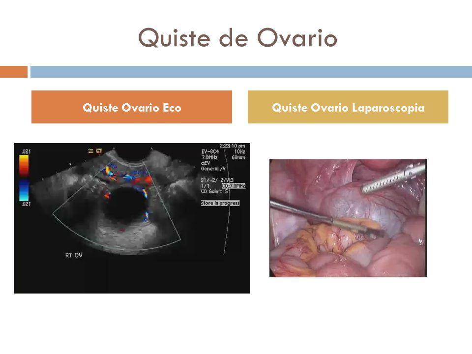 Quiste de Ovario Quiste Ovario EcoQuiste Ovario Laparoscopia