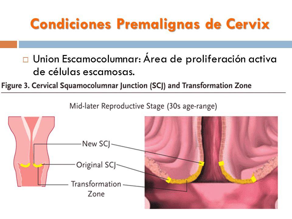 Condiciones Premalignas de Cervix  Union Escamocolumnar: Área de proliferación activa de células escamosas.