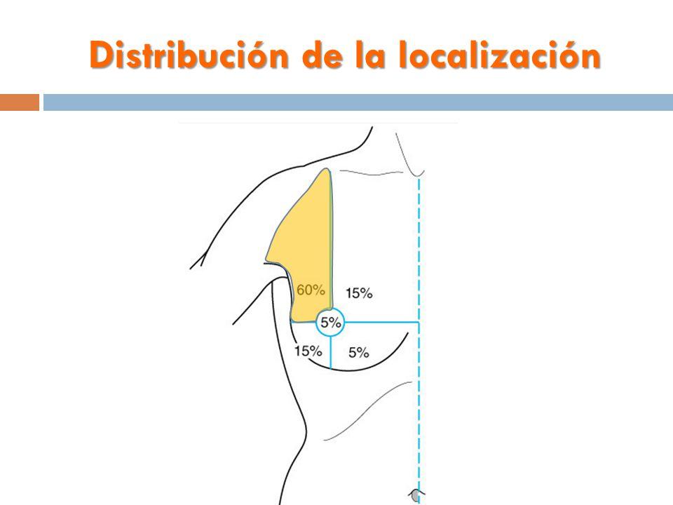 Distribución de la localización