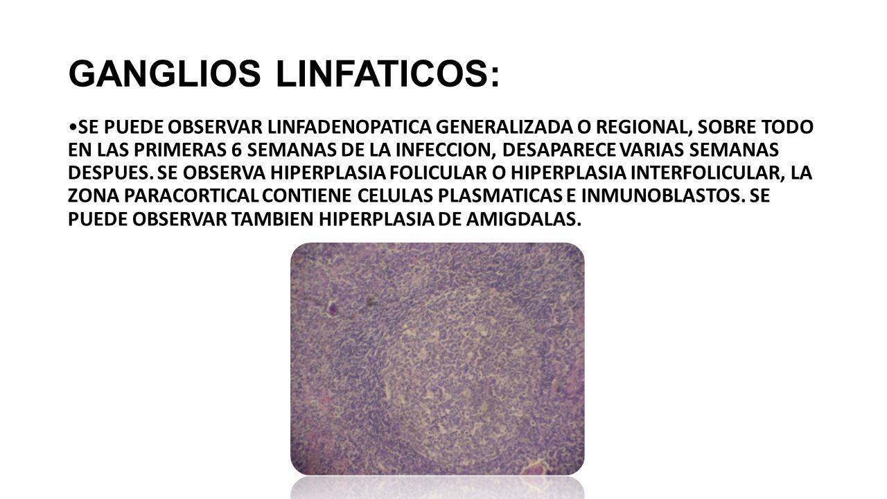 GANGLIOS LINFATICOS: SE PUEDE OBSERVAR LINFADENOPATICA GENERALIZADA O REGIONAL, SOBRE TODO EN LAS PRIMERAS 6 SEMANAS DE LA INFECCION, DESAPARECE VARIAS SEMANAS DESPUES.