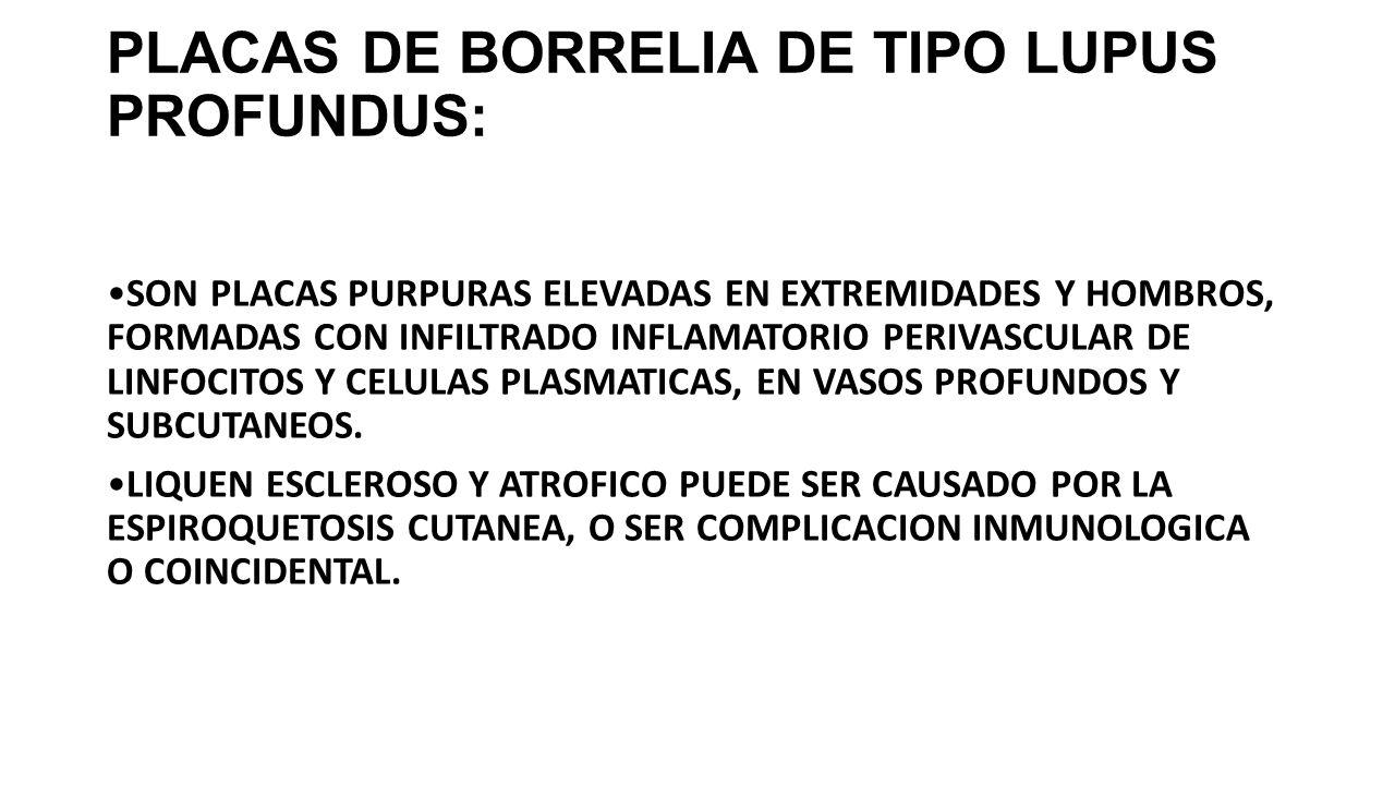 PLACAS DE BORRELIA DE TIPO LUPUS PROFUNDUS: SON PLACAS PURPURAS ELEVADAS EN EXTREMIDADES Y HOMBROS, FORMADAS CON INFILTRADO INFLAMATORIO PERIVASCULAR DE LINFOCITOS Y CELULAS PLASMATICAS, EN VASOS PROFUNDOS Y SUBCUTANEOS.