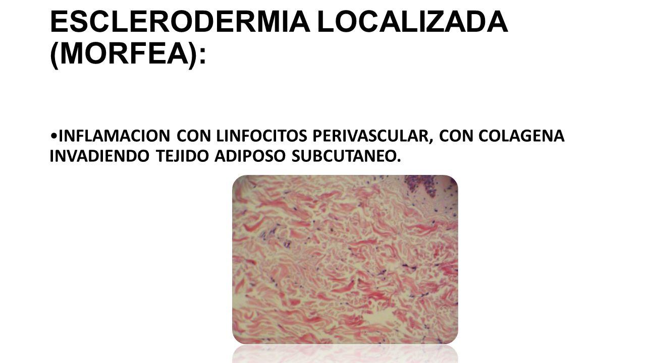 FASCITIS DIFUSA CON EOSINOFILIA: INDURACION SUBCUTANEA, POSTERIOR EN 1 A 2 MESES AL ERITEMA MIGRATORIO, GENERALMENTE EN EL MISMO SITIO, SE CARACTERIZA POR INFLAMACION PERIVASCULAR DE LINFOCITOS Y CELULAS PLAMATICAS EN DERMIS, CON PANICULITIS FOCAL DE CELULAS PLASMATICAS, CON EDEMA, LINFOCITOS, HISTIOCITOS, CELULAS CEBADAS Y EOSINOFILOS.