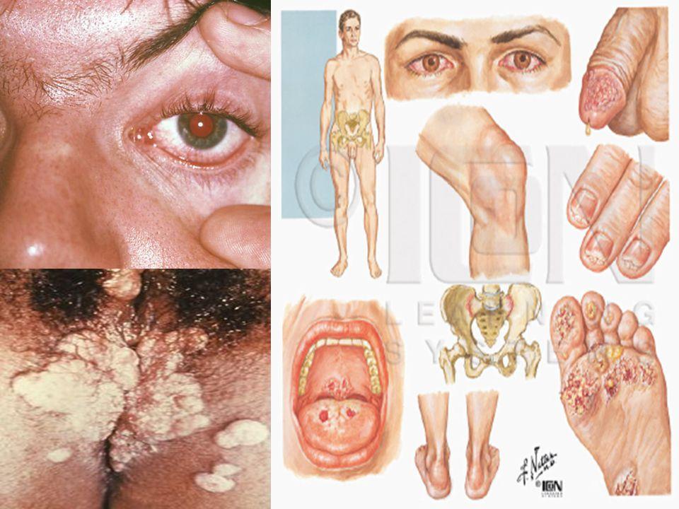 enfermedad inflamatoria pélvica infecciones que se presentan en el útero (matriz), las trompas de Falopio (los conductos que transportan los óvulos desde los ovarios hasta el útero) y otros órganos genitales internos y que causa síntomas como dolor en el abdomen inferior.