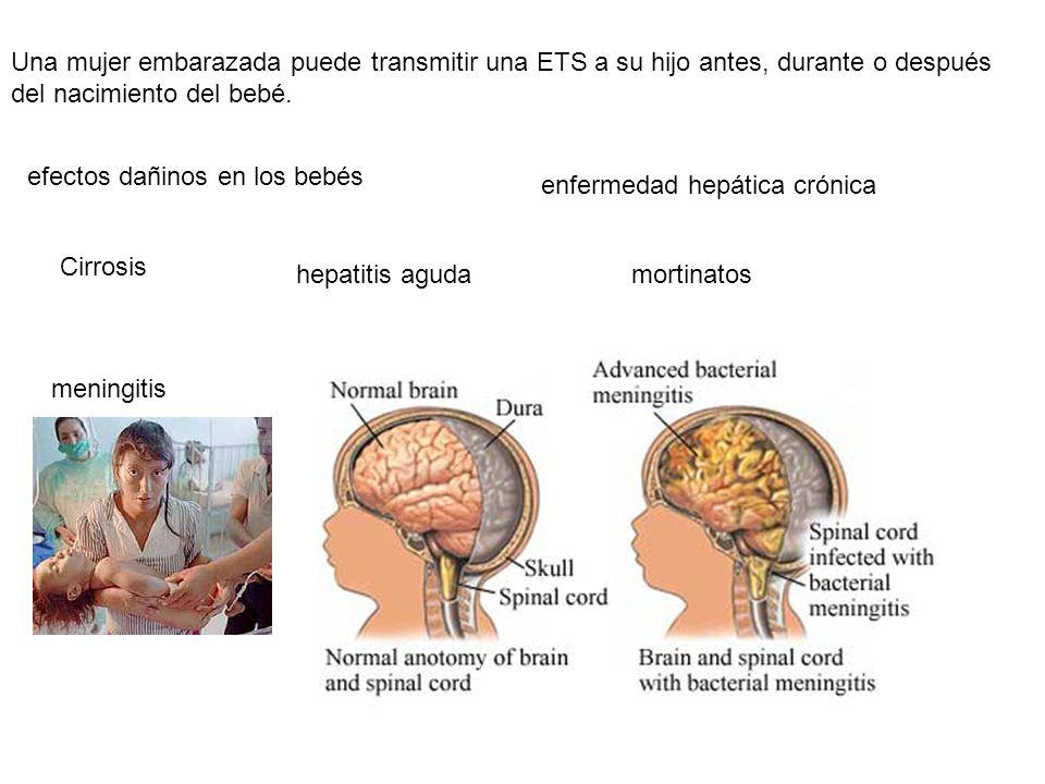 Una mujer embarazada puede transmitir una ETS a su hijo antes, durante o después del nacimiento del bebé. efectos dañinos en los bebés mortinatoshepat