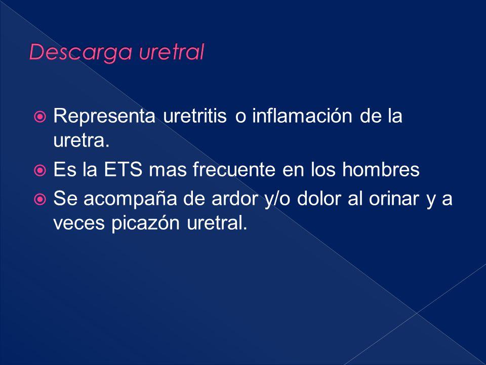  Representa uretritis o inflamación de la uretra.  Es la ETS mas frecuente en los hombres  Se acompaña de ardor y/o dolor al orinar y a veces picaz