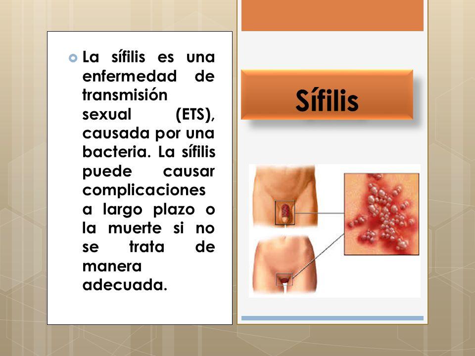 Infecciones de Transmisión Sexual mas comunes  Sida(VIH)  Herpes  Sífilis  Clamidiasis  Gonorrea  Vaginosis  Tricomona  Cándida  Papiloma Humano