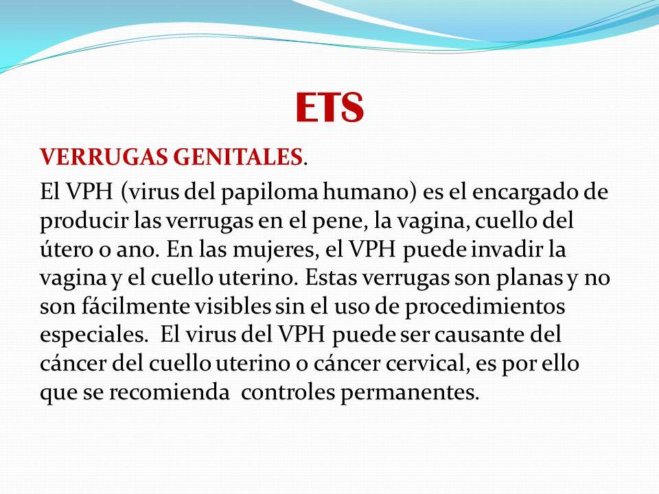 ETS VERRUGAS GENITALES. El VPH (virus del papiloma humano) es el encargado de producir las verrugas en el pene, la vagina, cuello del útero o ano. En