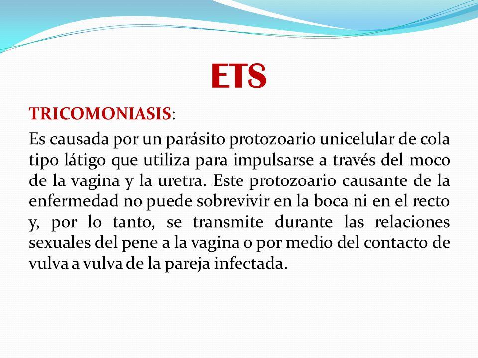 ETS TRICOMONIASIS: Es causada por un parásito protozoario unicelular de cola tipo látigo que utiliza para impulsarse a través del moco de la vagina y