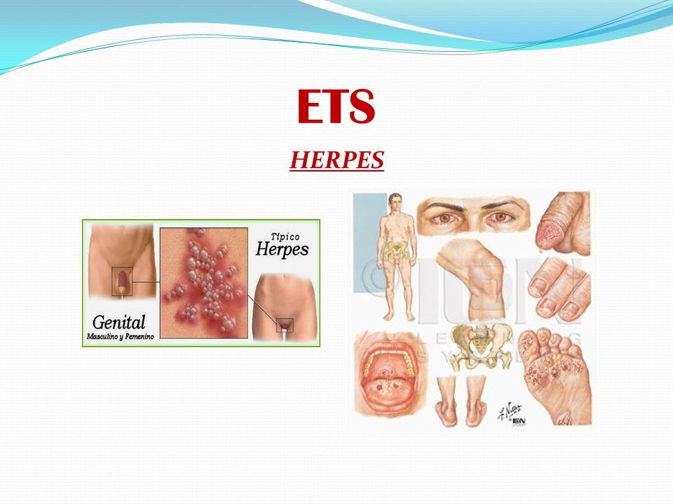 ETS HERPES: Es una infección causada por dos virus diferentes pero estrechamente relacionados.