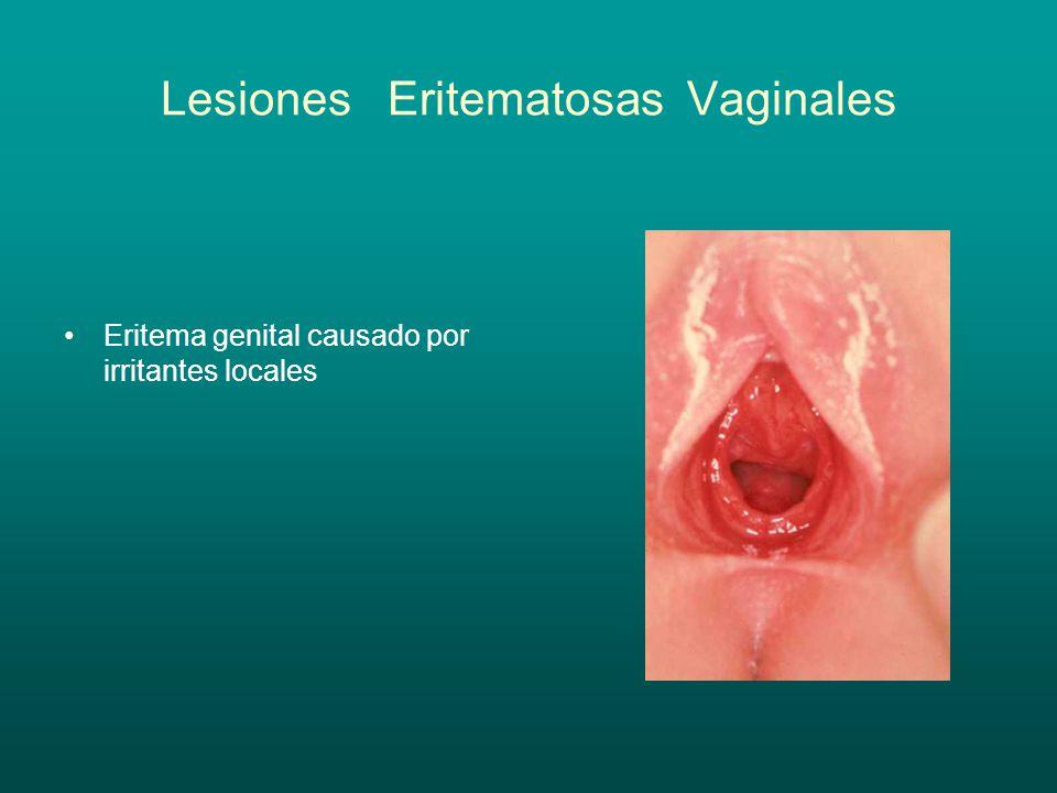 Lesiones Eritematosas Vaginales Eritema genital causado por irritantes locales