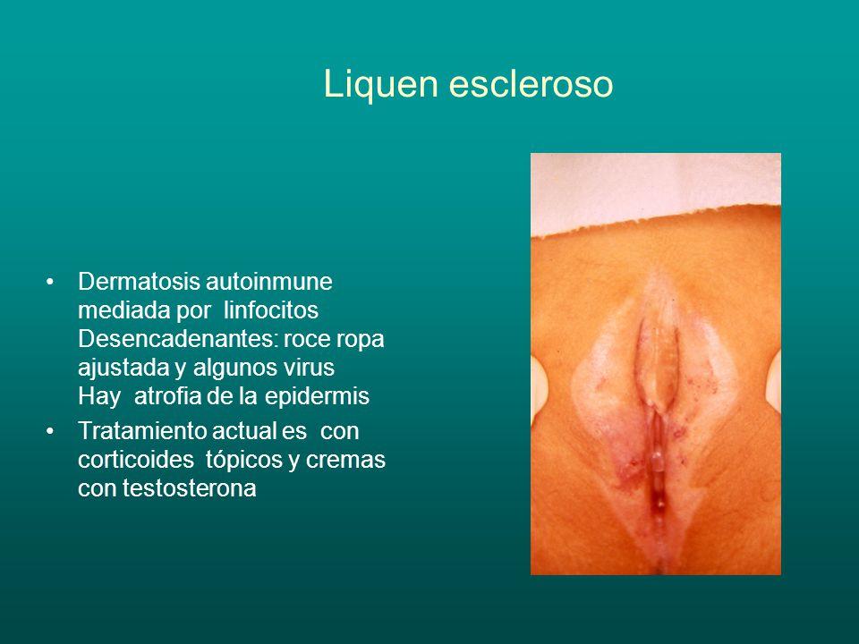 Secreción Vaginal