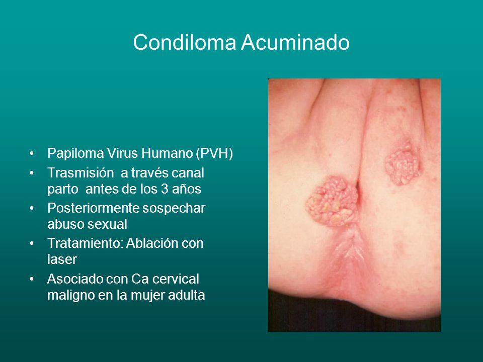 Condiloma Acuminado Papiloma Virus Humano (PVH) Trasmisión a través canal parto antes de los 3 años Posteriormente sospechar abuso sexual Tratamiento: