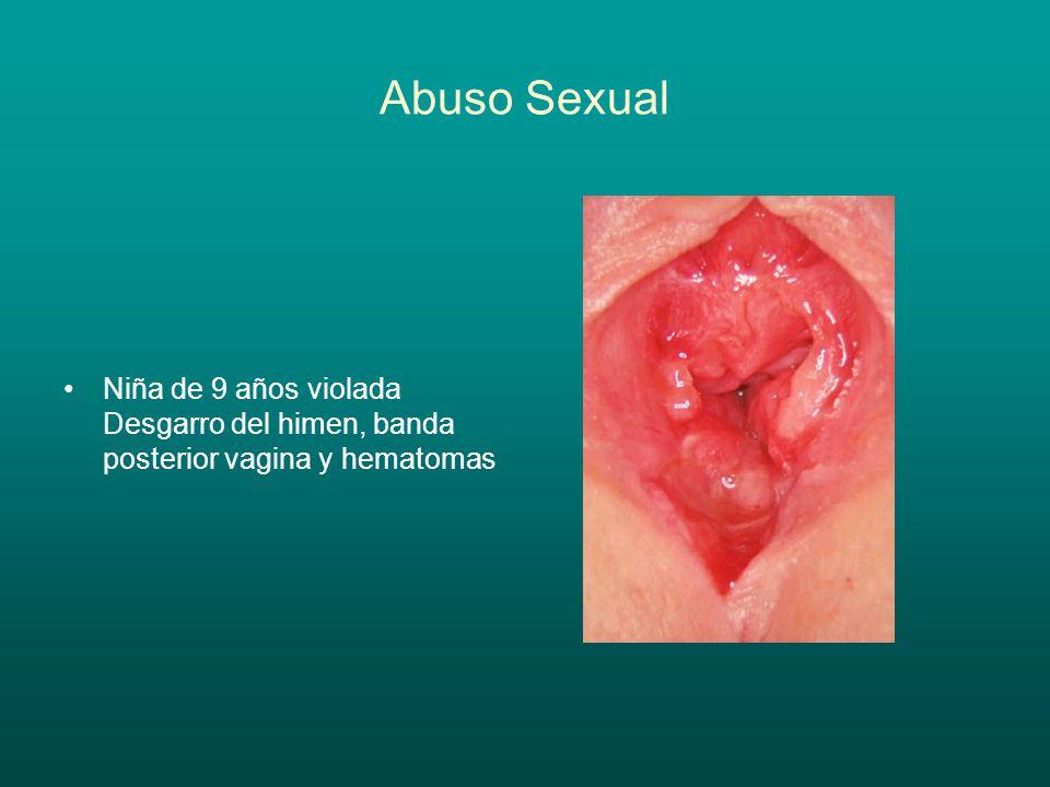 Abuso Sexual Niña 9 años Examen bajo anestesia Maceracion y eritema piel vulvar Orificio himenal dilatado con lesiones cicatriciales