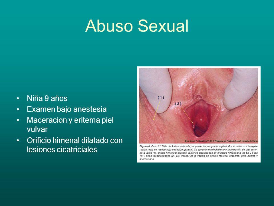 Patología Tumoral Genital
