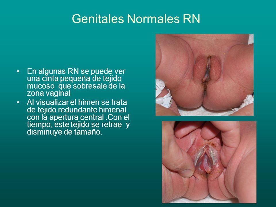 Genitales Normales RN En algunas RN se puede ver una cinta pequeña de tejido mucoso que sobresale de la zona vaginal Al visualizar el himen se trata d