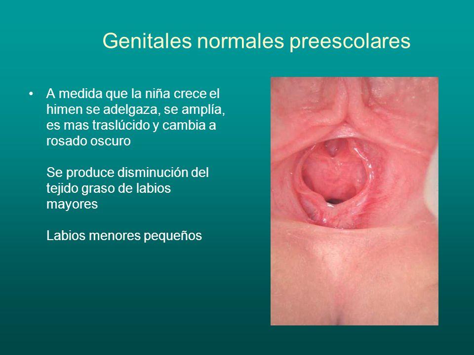 Genitales normales preescolares A medida que la niña crece el himen se adelgaza, se amplía, es mas traslúcido y cambia a rosado oscuro Se produce dism