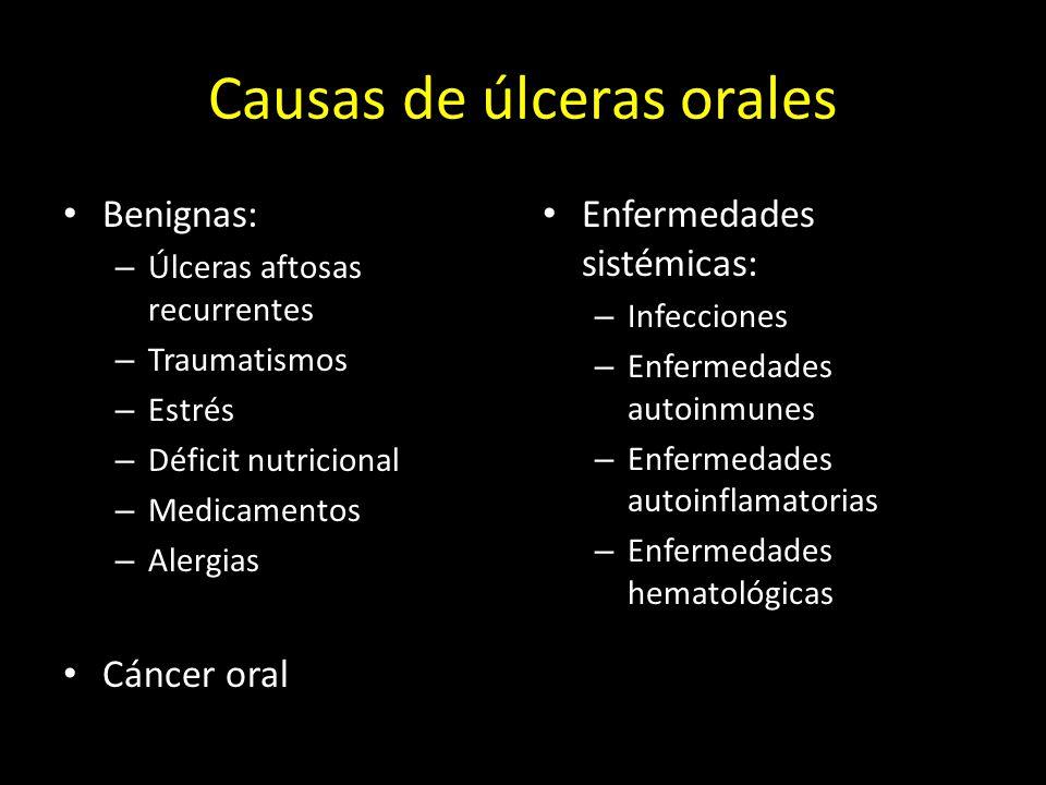 Causas de úlceras orales Benignas: – Úlceras aftosas recurrentes – Traumatismos – Estrés – Déficit nutricional – Medicamentos – Alergias Cáncer oral Enfermedades sistémicas: – Infecciones – Enfermedades autoinmunes – Enfermedades autoinflamatorias – Enfermedades hematológicas