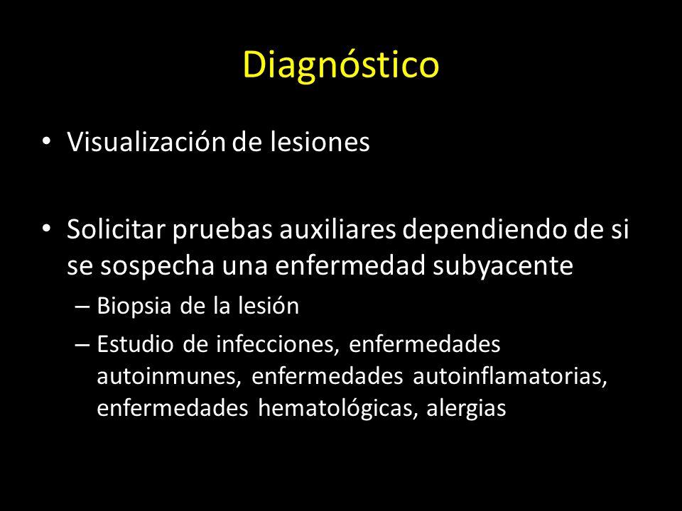Diagnóstico Visualización de lesiones Solicitar pruebas auxiliares dependiendo de si se sospecha una enfermedad subyacente – Biopsia de la lesión – Estudio de infecciones, enfermedades autoinmunes, enfermedades autoinflamatorias, enfermedades hematológicas, alergias