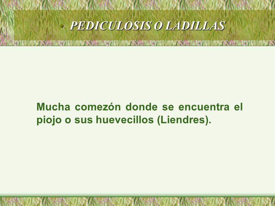 PEDICULOSIS O LADILLASPEDICULOSIS O LADILLAS Mucha comezón donde se encuentra el piojo o sus huevecillos (Liendres).