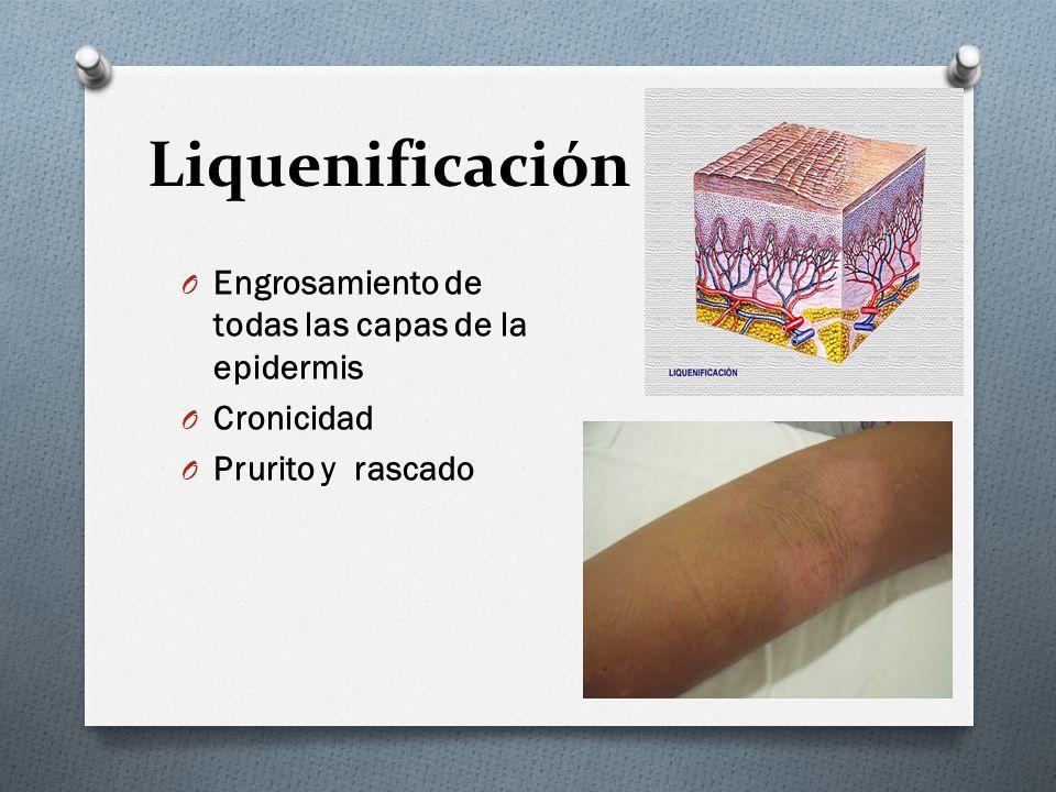 Liquenificación O Engrosamiento de todas las capas de la epidermis O Cronicidad O Prurito y rascado
