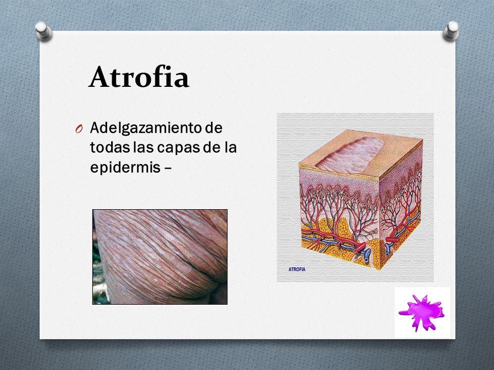 Atrofia O Adelgazamiento de todas las capas de la epidermis –