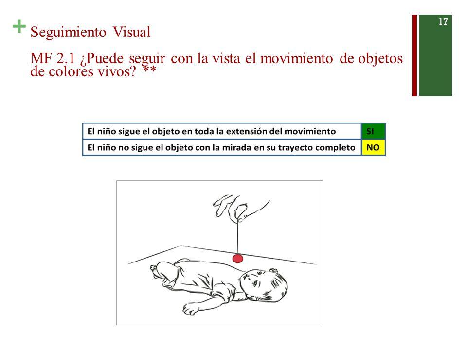 + Seguimiento Visual MF 2.1 ¿Puede seguir con la vista el movimiento de objetos de colores vivos.