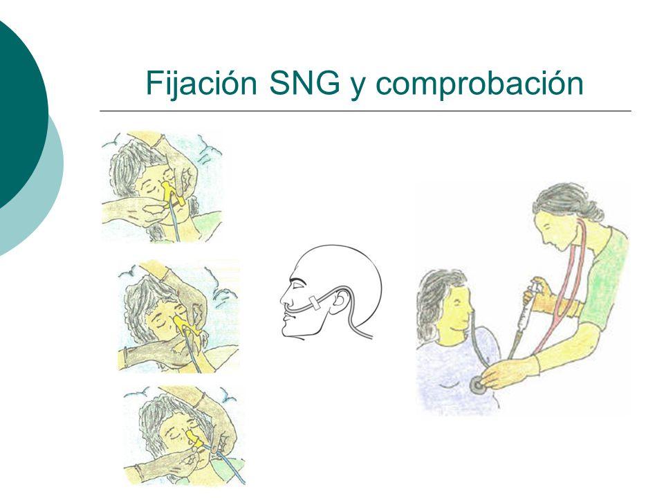 Retiro SNG Explicar al paciente retiro de sonda o Lavado de manos y uso de guantes proc.