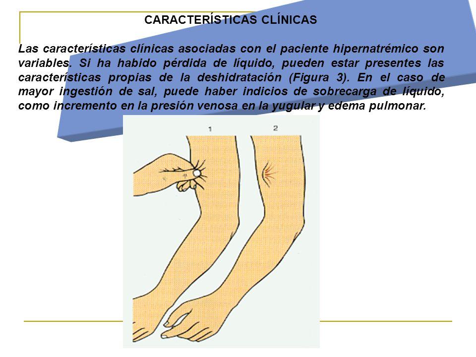 CARACTERÍSTICAS CLÍNICAS Las características clínicas asociadas con el paciente hipernatrémico son variables.