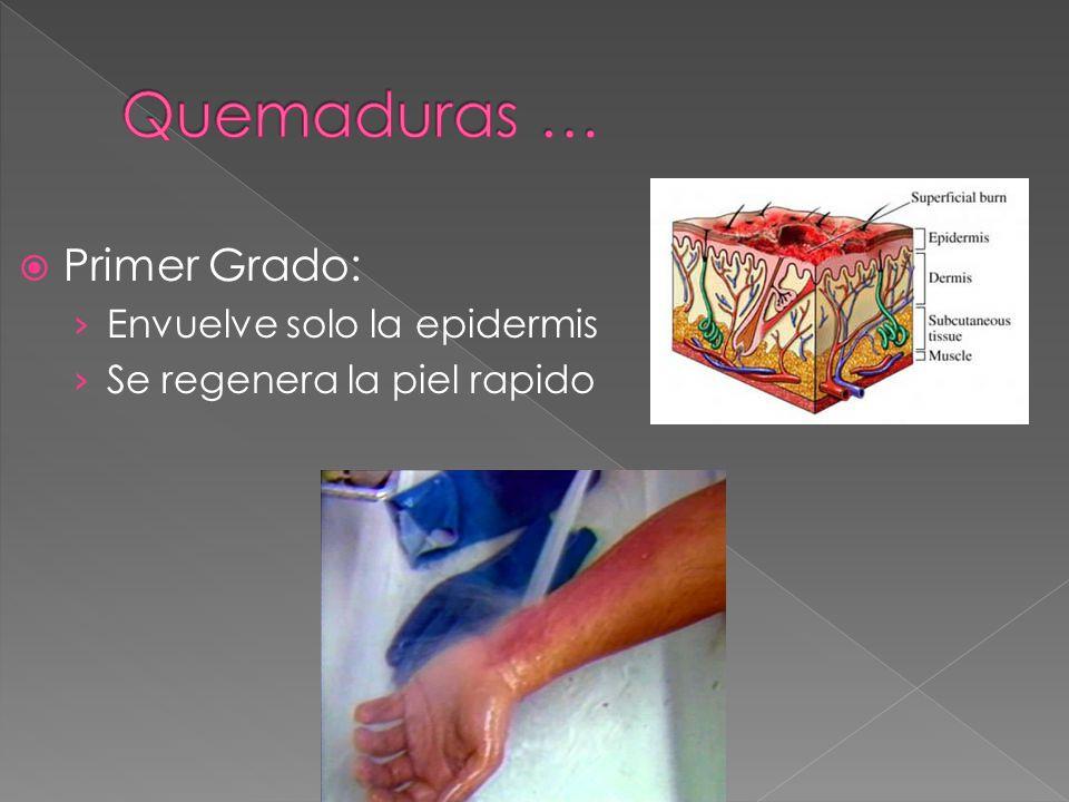  Primer Grado: › Envuelve solo la epidermis › Se regenera la piel rapido