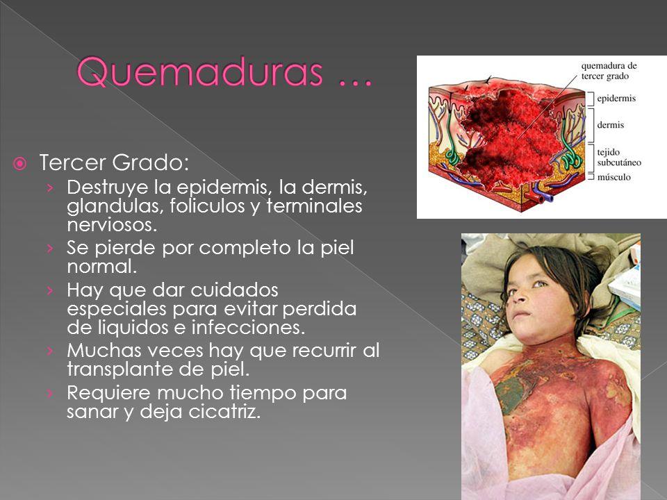  Tercer Grado: › Destruye la epidermis, la dermis, glandulas, foliculos y terminales nerviosos. › Se pierde por completo la piel normal. › Hay que da