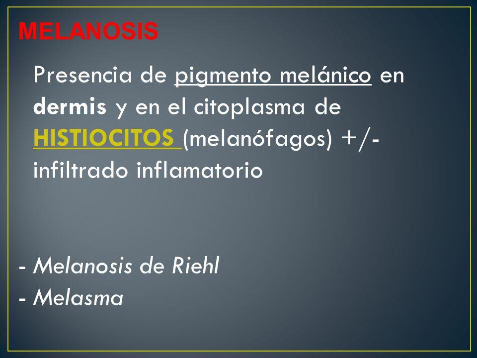 MELANOSIS Presencia de pigmento melánico en dermis y en el citoplasma de HISTIOCITOS (melanófagos) +/- infiltrado inflamatorio -Melanosis de Riehl -Melasma