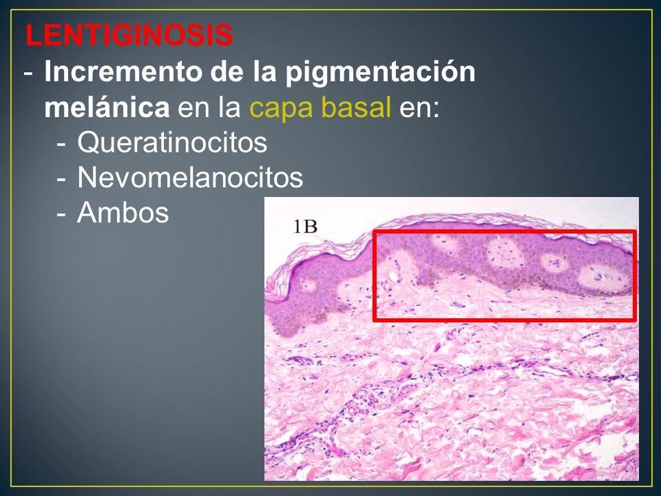 LENTIGINOSIS -Incremento de la pigmentación melánica en la capa basal en: -Queratinocitos -Nevomelanocitos -Ambos