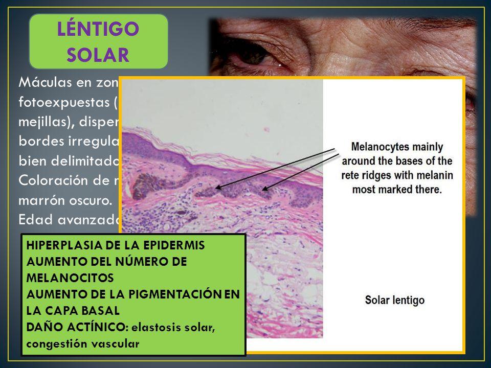 LÉNTIGO SOLAR Máculas en zonas fotoexpuestas (sobre todo mejillas), dispersas, bordes irregulares pero bien delimitados.