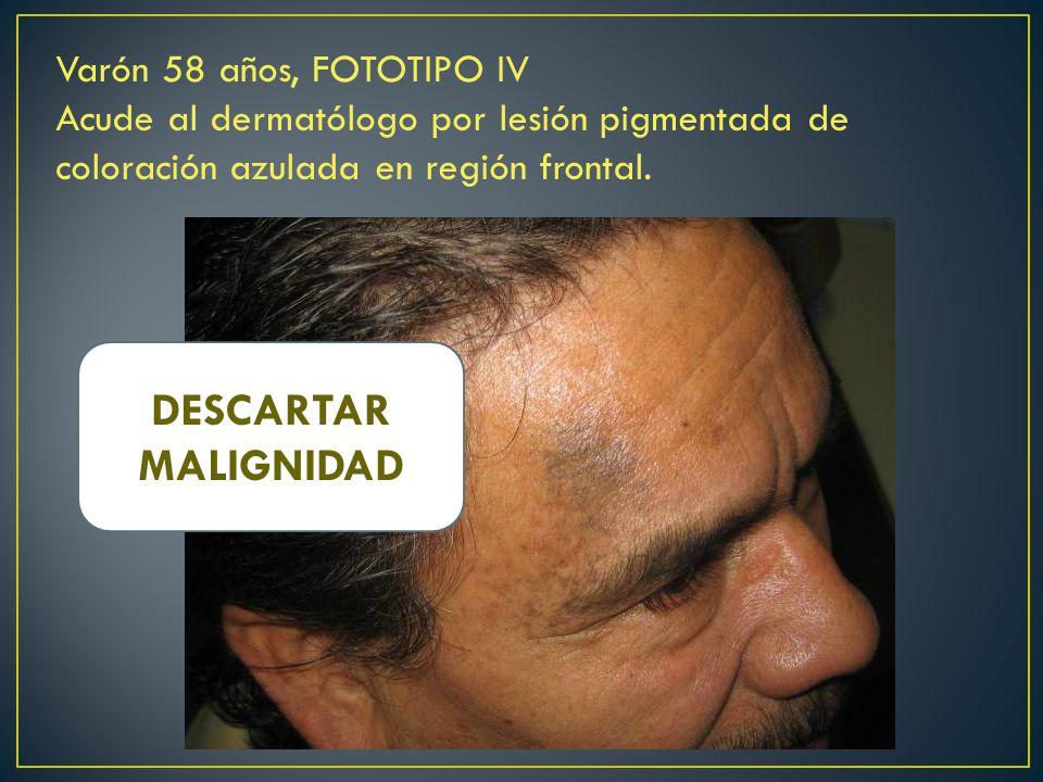 Varón 58 años, FOTOTIPO IV Acude al dermatólogo por lesión pigmentada de coloración azulada en región frontal.