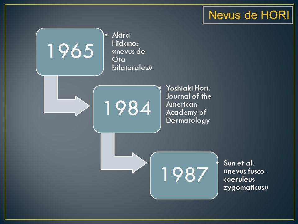 Nevus de HORI 1965 Akira Hidano: «nevus de Ota bilaterales» 1984 Yoshiaki Hori: Journal of the American Academy of Dermatology 1987 Sun et al: «nevus fusco- coeruleus zygomaticus»