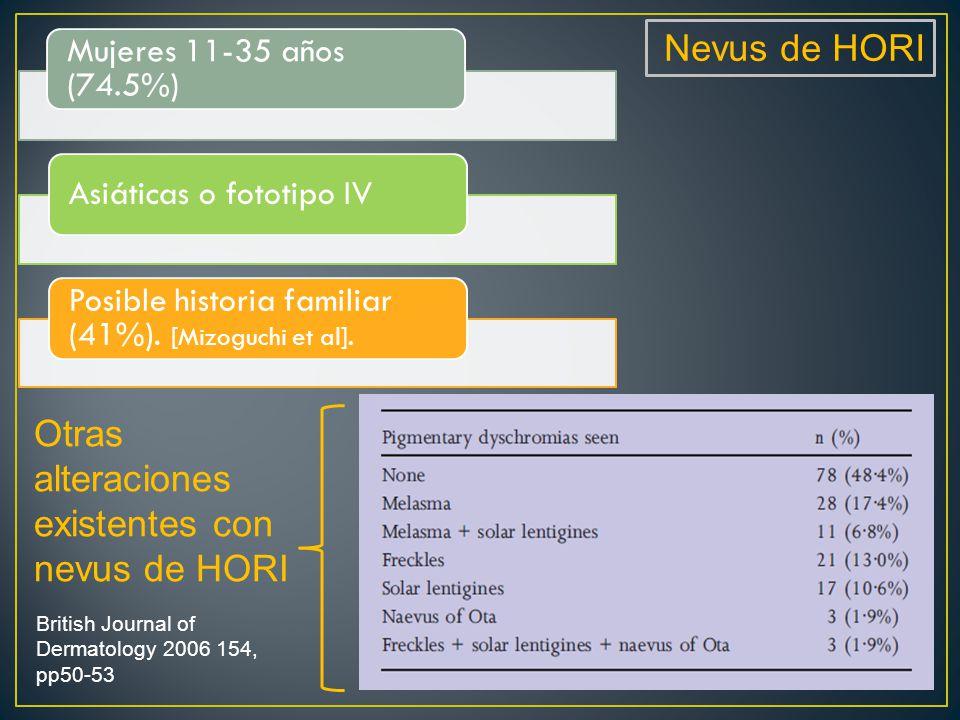 Nevus de HORI Mujeres 11-35 años (74.5%) Asiáticas o fototipo IV Posible historia familiar (41%).