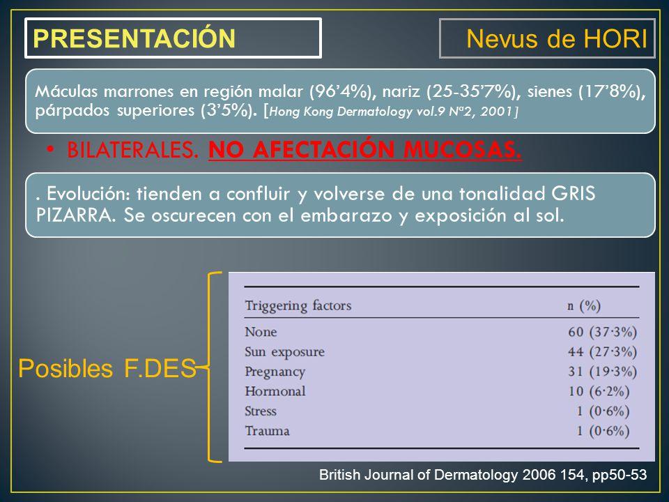 Posibles F.DES PRESENTACIÓN Nevus de HORI Máculas marrones en región malar (96'4%), nariz (25-35'7%), sienes (17'8%), párpados superiores (3'5%).