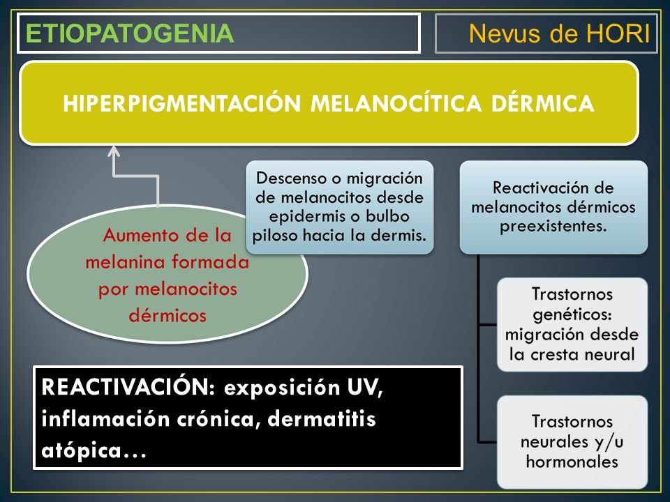 Nevus de HORI ETIOPATOGENIA HIPERPIGMENTACIÓN MELANOCÍTICA DÉRMICA REACTIVACIÓN: exposición UV, inflamación crónica, dermatitis atópica…